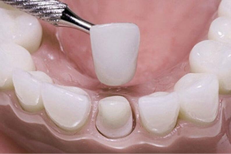 g-corone-dentali-1