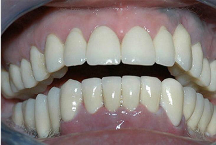 g-corone-dentali-4